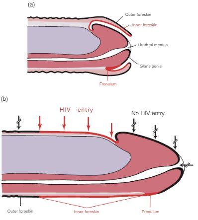 flaccid penis foreskin